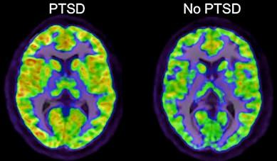 Quantum Brain Mapping 129